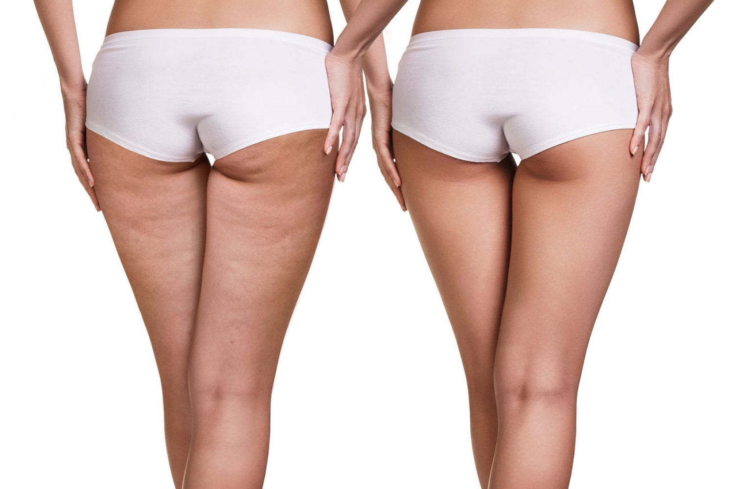 68291325 - female buttocks before and after cellulite skin isolated on white